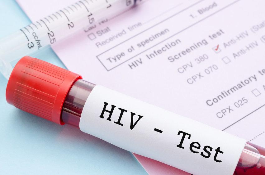 Nel 2016 diminuiti i casi Hiv ma di meno tra i giovani