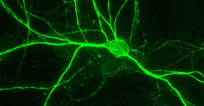 Scoperta la proteina che guida il sistema nervoso